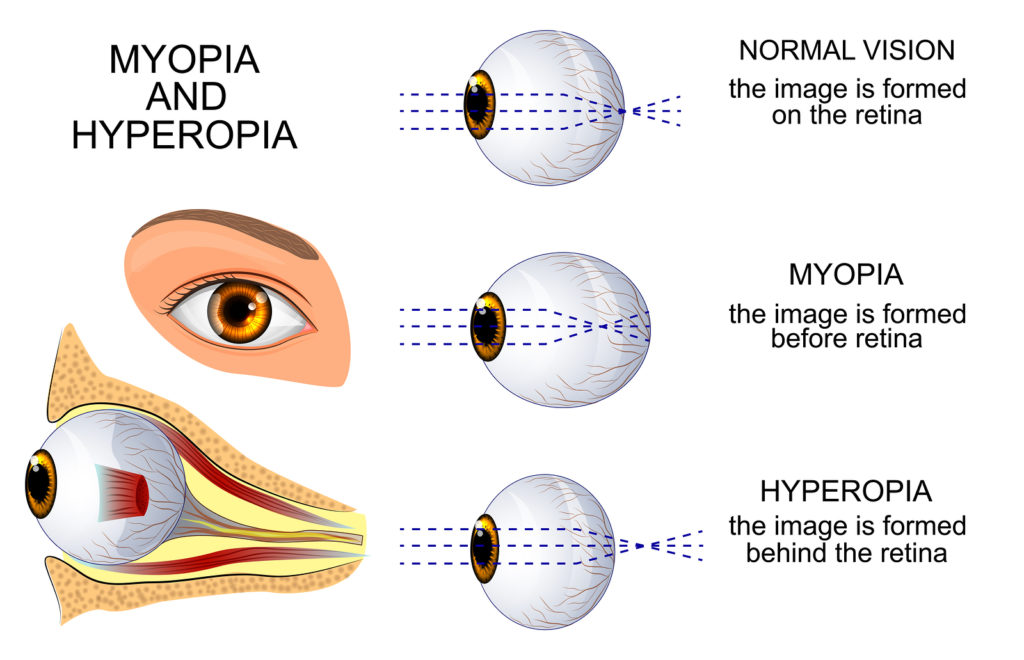 Myopia Short Sightedness Optometrist Norwest Vision