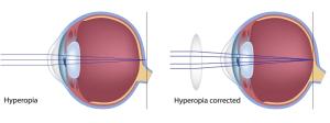 Long-sightedness- hypermetropia