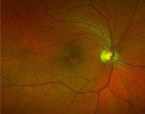 Optomap Retinal Image